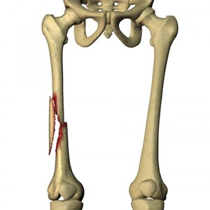 Femur Fracture type and Their Treatment