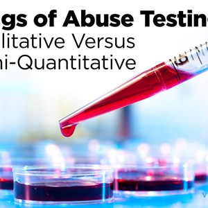 Drugs of Abuse Testing Market Report 2021-2031 : Newly Published By Visiongain