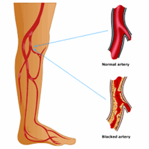 Global Peripheral Arterial Disease (PAD) Drugs Market 2020: AstraZeneca Plc. (UK), Bayer HealthCare Pharmaceuticals (Germany), Bristol-Myers Squibb Company (US), Merck & Co.